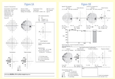 visual field defects in glaucoma pdf