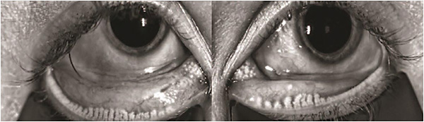 Figure 2: LipiView captures an image of the meibomian glands in both lower eyelids. This patient has severe meibomian gland drop out, which is a large contributor to DED.